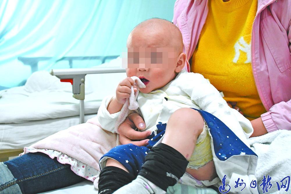 心痛!打洒面汤致十个月大婴儿全身严重烫伤,家人希望爱心人士施以援手