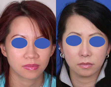 鼻翼整形通常包括鼻翼再造、鼻翼缩小、鼻翼去薄整形、鼻翼宽整形、鼻翼缺损修复等五种手术,因为鼻翼的实际情况不一样,所采用的手术方式不一样,价格也是不同的.