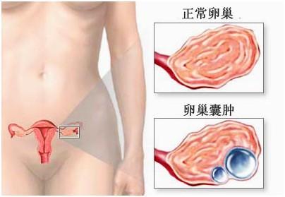 多囊卵巢综合症治疗专家