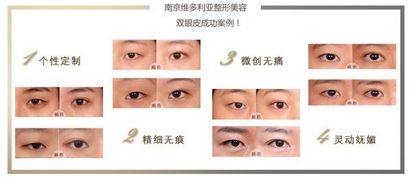 南京割双眼皮费用